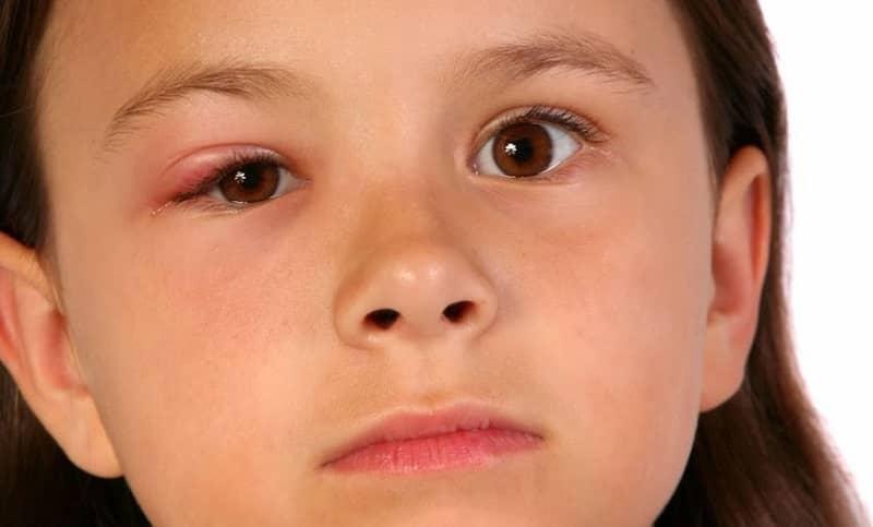 Lẹo mắt là gì?
