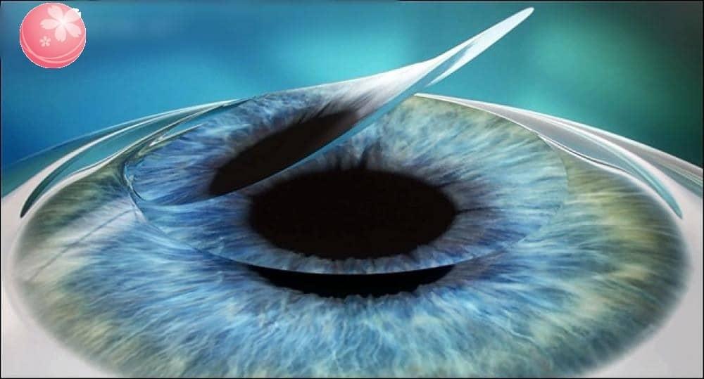 Lưu ý gì khi mổ mắt cận