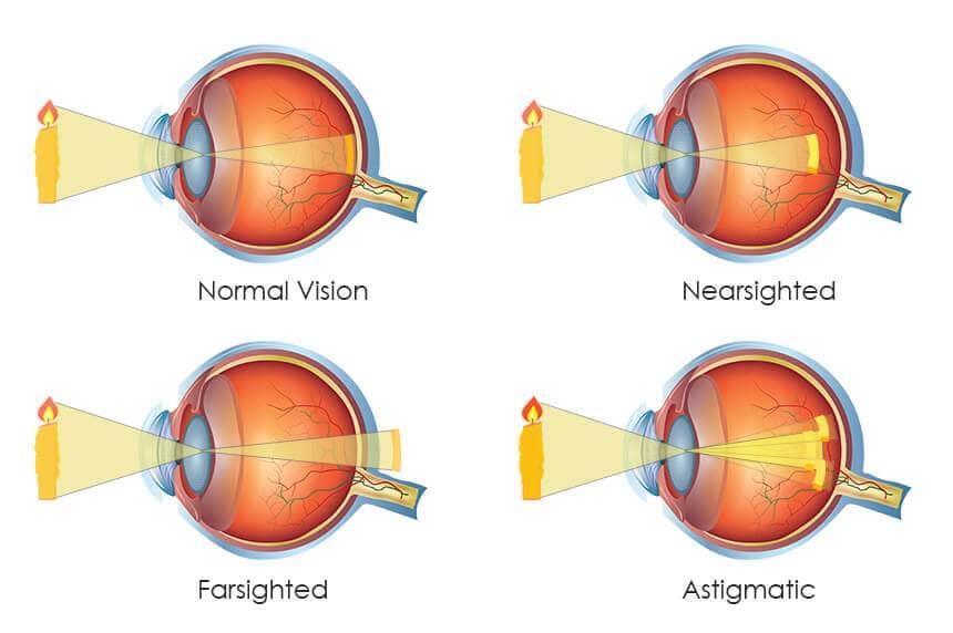 Mắt thường và các tật thông thường của mắt: cận, viễn, loạn